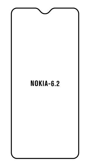 Hydrogel - Privacy Anti-Spy ochranná fólia - Nokia 6.2
